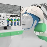 Illustration of combined TMS and EEG methods